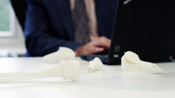 医疗健康领域应用3D打印,3D打印案例