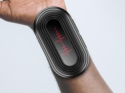 腕式激光治疗仪