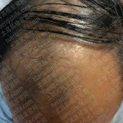 植发前头顶