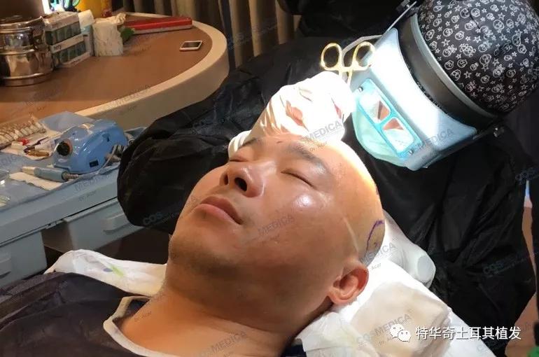做植发手术会有疼痛感吗?有没有无痛植发技术?
