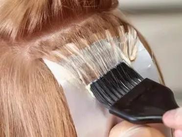 植发后可以染发吗?我怕再不炫就老了
